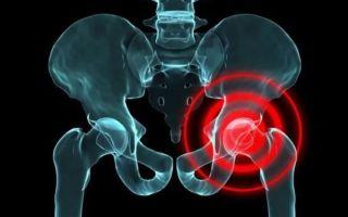 Почему возникают боли в тазобедренном суставе при ходьбе