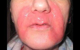 Как и чем лечить ожоги на лице — самые эффективные средства для восстановления кожи