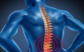 Что делать, если сорвал спину: первая помощь, методы лечения