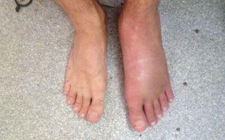 Как лечить отек стопы на ноге после травмы