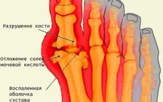 Плюснефаланговый сустав и его заболевания