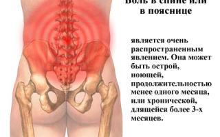 Почему возникает сильная боль в пояснице и как ее лечить?