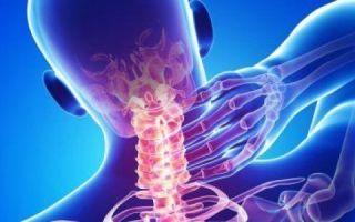 Шейный остеохондроз 2 степени: причины развития, методы эффективного лечения