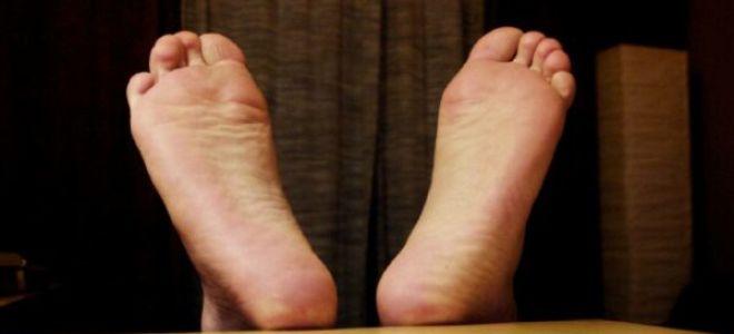 Шпора на пятках: быстро и эффективно лечим в домашних условиях