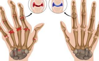 Наиболее частые заболевания суставов кистей рук