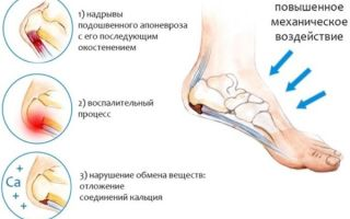 Почему болят стопы ног и пятки