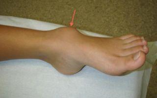 Особенности гигромы на ноге