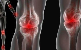 Что такое остеофиты коленного сустава: способы диагностики и методы эффективного лечения