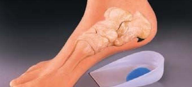 Шипы на пятках: появление и развитие новообразования, методы лечения