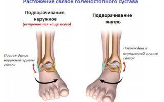 Растяжении связок ног (коленного и голеностопного суставов)