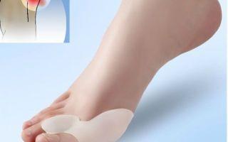 Фиксаторы для большого пальца ноги