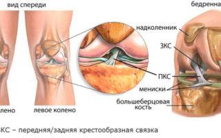 Что делать если опухло колено