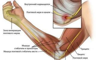Боли в мышцах выше или ниже локтя