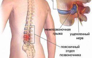 Симптомы грыжи различных отделов позвоночника