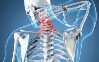 Что делать, если не поворачивается шея: симптомы заболевания, методы лечения недуга