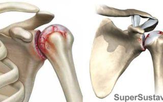 Правильное лечение артроза плечевого сустава