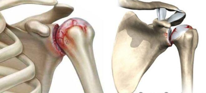 Упражнения для лечения артроза плечевого сустава видео лфк артрит тазобедренного сустава подострый период