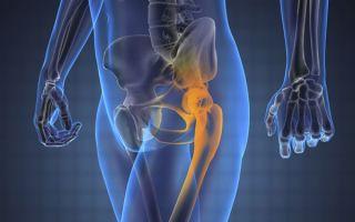 Что такое трохантерит тазобедренного сустава и как с ним бороться: первые признаки заболевания