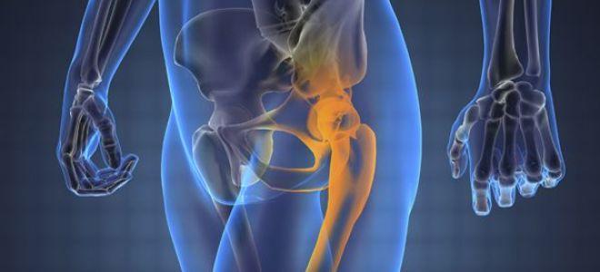 Первые признаки заболевания тазобедренного сустава связки голеностопного сустава