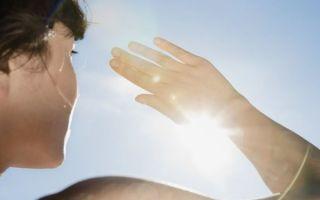 Чем лечить солнечные ожоги в домашних условиях