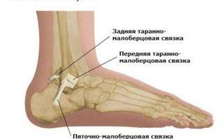 Как лечить растяжение связок стопы?