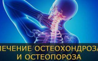 Способы лечения остеопороза в домашних условиях