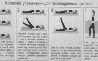 Лечебные упражнения при артрозе тазобедренного сустава