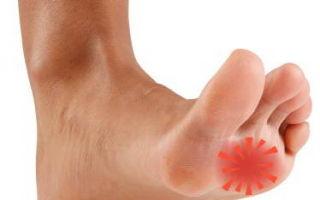 Боль в ступне возле пальцев при ходьбе