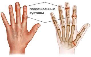 Причины воспаления суставов на пальцах рук и его лечение