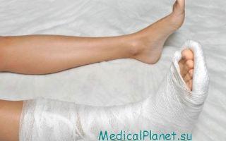 Как лечить переломы таранной кости в домашних условиях и как быстро восстановиться после заживления?