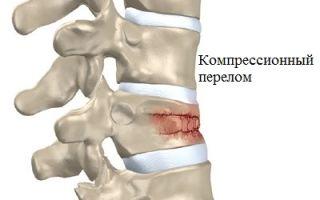 Основные симптомы перелома позвоночника