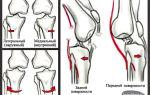 Вывих колена и его лечение