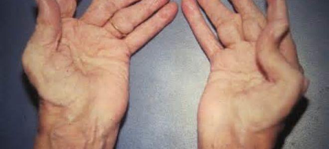 Лечим ревматоидный артрит правильно: медикаменты и народные средства