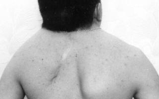 Синдром клиппеля-фейля