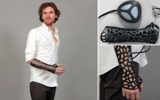 Альтернатива гипсу при переломах рук и ног — виды и характеристики современных фиксирующих средств