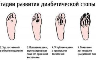 Боль в середине ступни