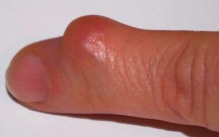 Особенности гигромы на пальце руки