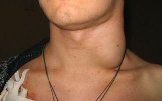 Шейный лимфаденит — диагностика и методы эффективного лечения