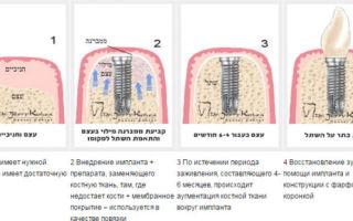 Регенерация костных тканей