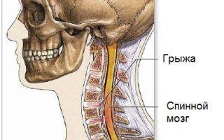 Симптомы грыжи в шейном отделе позвоночника