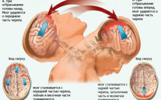 Хлыстовая травма шеи