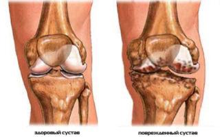 Реактивный артрит коленных суставов