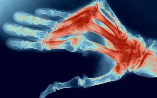 Что такое полиартрит суставов и методы его лечения: причины и профилактика болезни