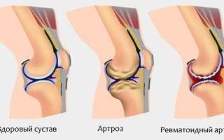Особенности реактивного артрита у детей