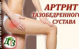Тазобедренный артрит: разновидности и лечение