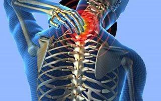 Симптомы и методы лечения остеохондроза шейного отдела позвочника