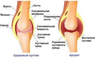Чем и как лечить воспаление коленного сустава