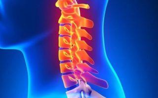 Шейно-черепной синдром: симптомы проявления заболевания, диагностика и лечение