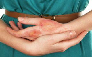Что делать и чем лечить ожоги от уксуса