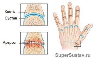 Симптомы и методы лечения артроза пальцев рук